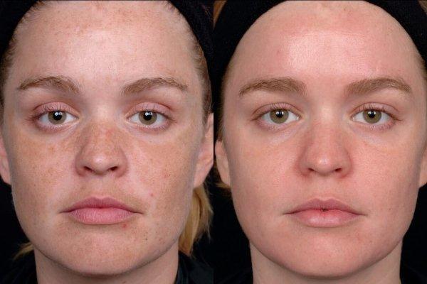 Как удалить пигментные пятна на лице, быстро и навсегда