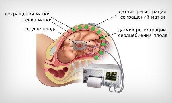 Кардиотография