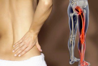 Как проявляется защемление седалищного нерва и что с этим делать